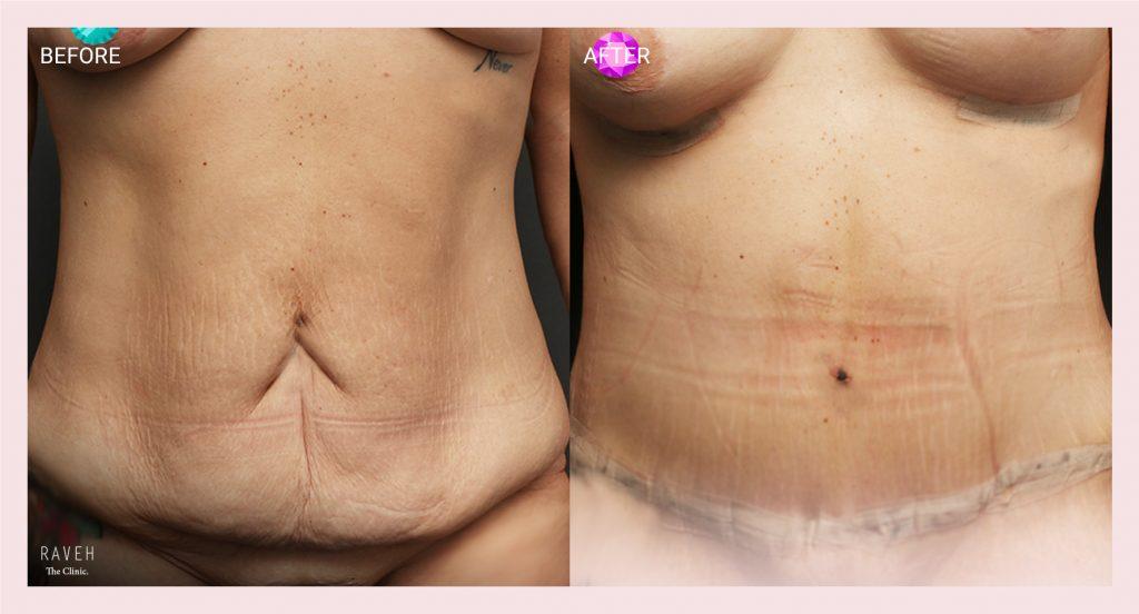 מתיחת בטן לאחר ירידה מאסיבית במשקל. בתמונה מ.ב בת 36 לאחר ירידה של 30 קג. התמונה נלקחה שבוע אחרי הניתוח.