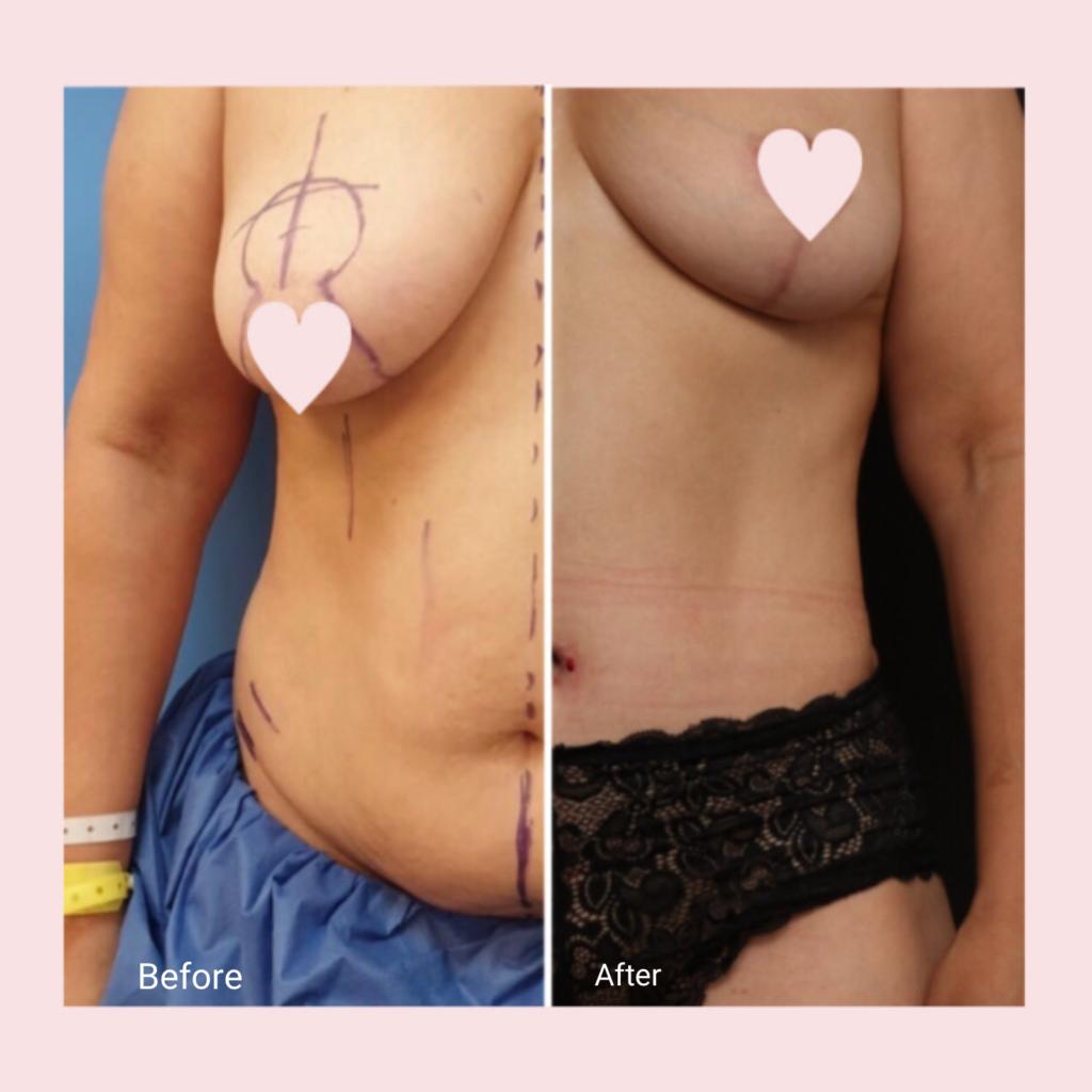 מאמי מייקאובר: הרמת חזה, שאיבת שומן ומתיחת בטן