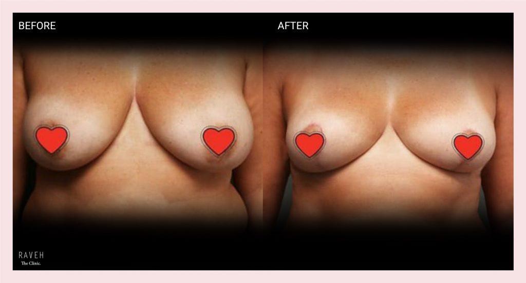 ניתוח הקטנת חזה לפני ואחרי