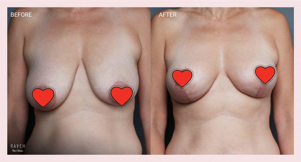 ניתוח הרמת חזה לפני ואחרי