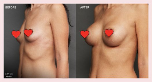 """הגדלת חזה לפני ואחרי במנח אמצע מתחת ומעל השריר. השתל של חברת מוטיבה, ארגונומי בנפח 245 סמ""""ק"""