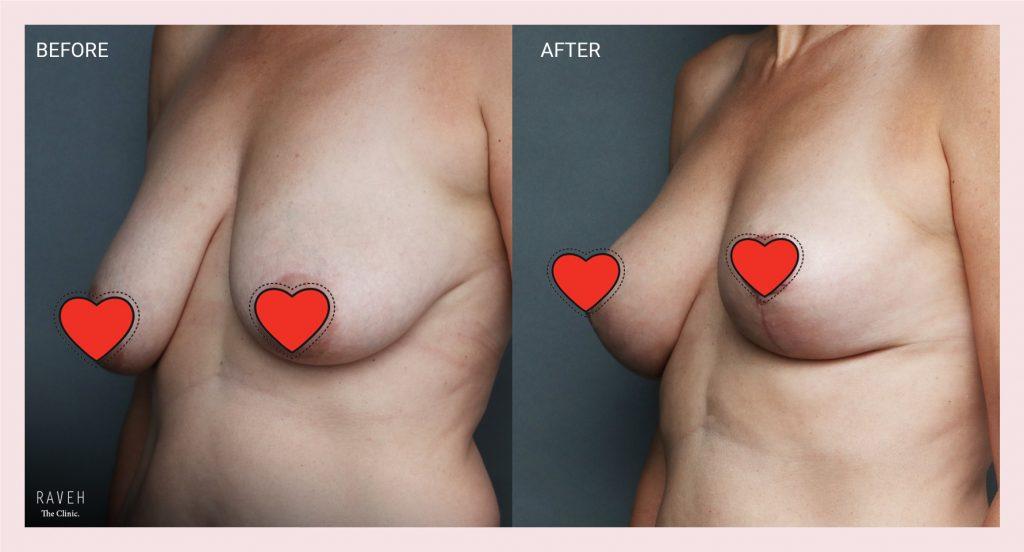 """ניתוח הרמת חזה לפני ואחרי אצל ד""""ר אברי רווה"""