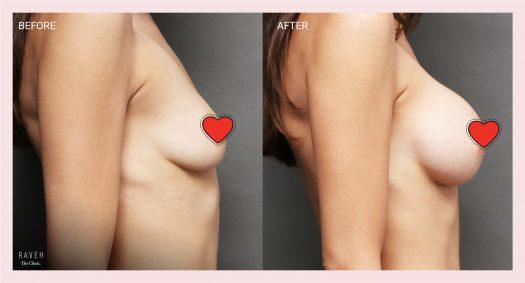 הגדלת חזה עם שתלי סיליקון לפני ואחרי