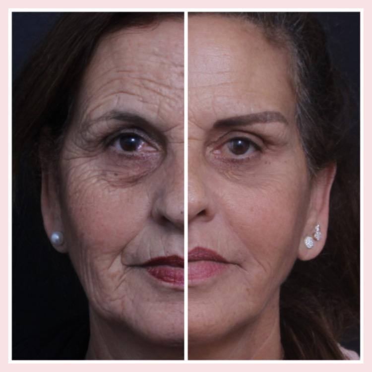 מתיחת פנים הרמת גבות פילינג בינוני, הזרקת שומן עפעפיים עליונים ותחתונים