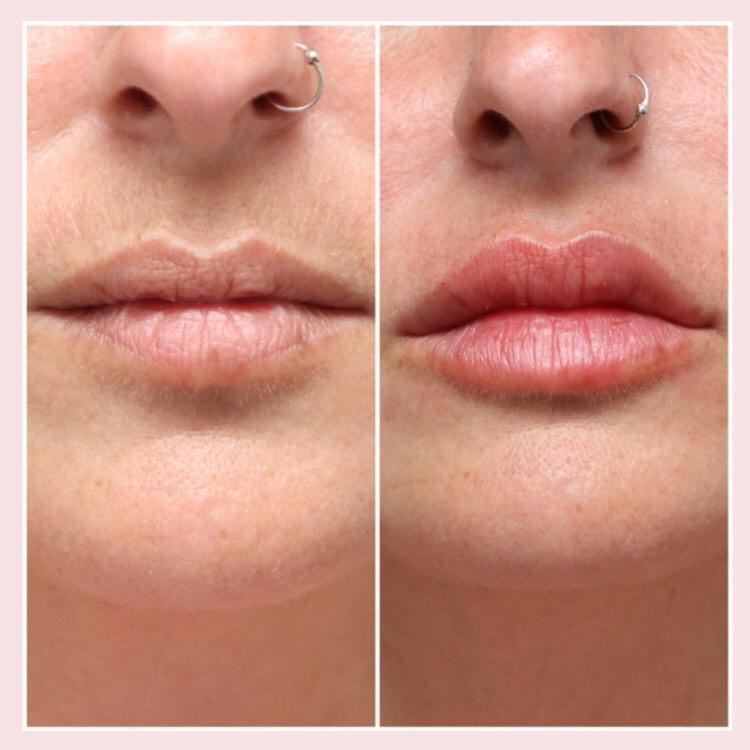 """מילוי שפתיים בחומצה היאלורונית יעודית לאיזור. 1 סמ""""ק"""