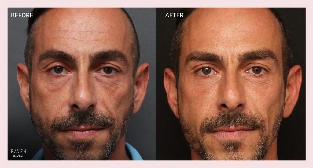 שיפור מראה ורענון בעור בעזרת פתיחת זוויות העיניים, הזרקות חומצה היאלרונית לשיפור העפעפיים ובניית נפחים מחודשת לספורטאי שמאבד נפחים בפנים