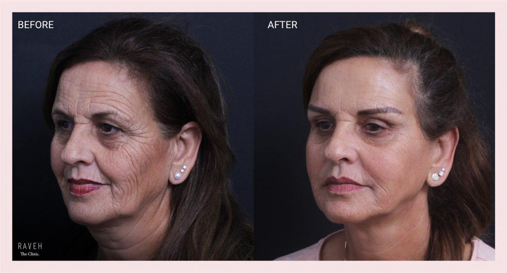 מתיחת פנים לטיפול בנפילת הפנים