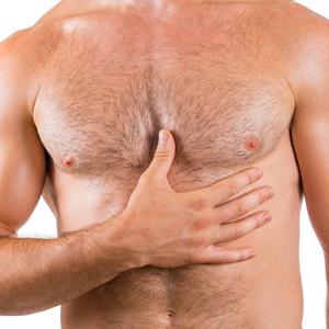 ניתוח גניקומסטיה להסרת חזה גברי