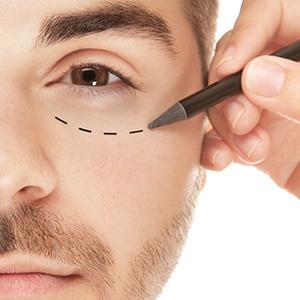 ניתוח עפעפיים לגברים – במה הוא שונה מניתוח לנשים