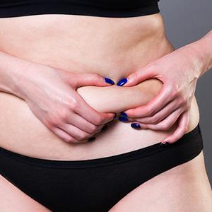 מהן השיטות לבצע ניתוח מתיחת בטן ולמי הוא מתאים