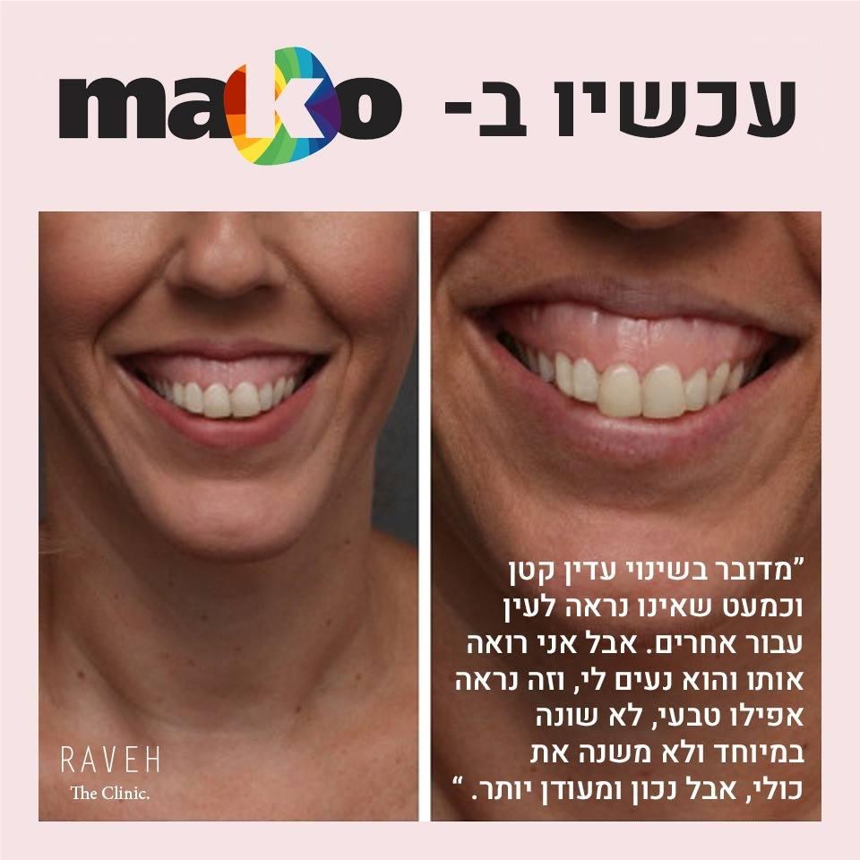 גאמי סמייל: החיוך החדש שלי
