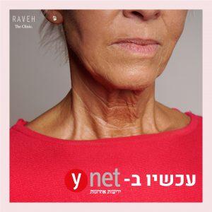 הטיפולים שמבטיחים להצעיר את הצוואר – בלי ניתוח