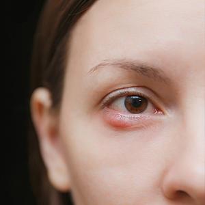 מהן הסיבות שבגללן נשים עוברות הרמת עפעפיים?