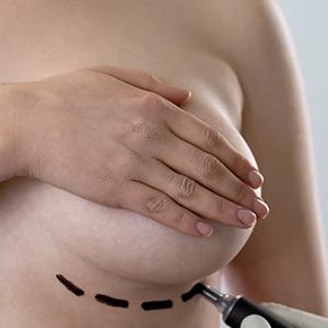 ניתוח הגדלת חזה ב-4 מימדים