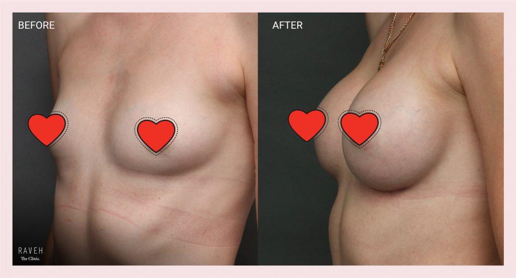 ניתוח הגדלת חזה עם שתל
