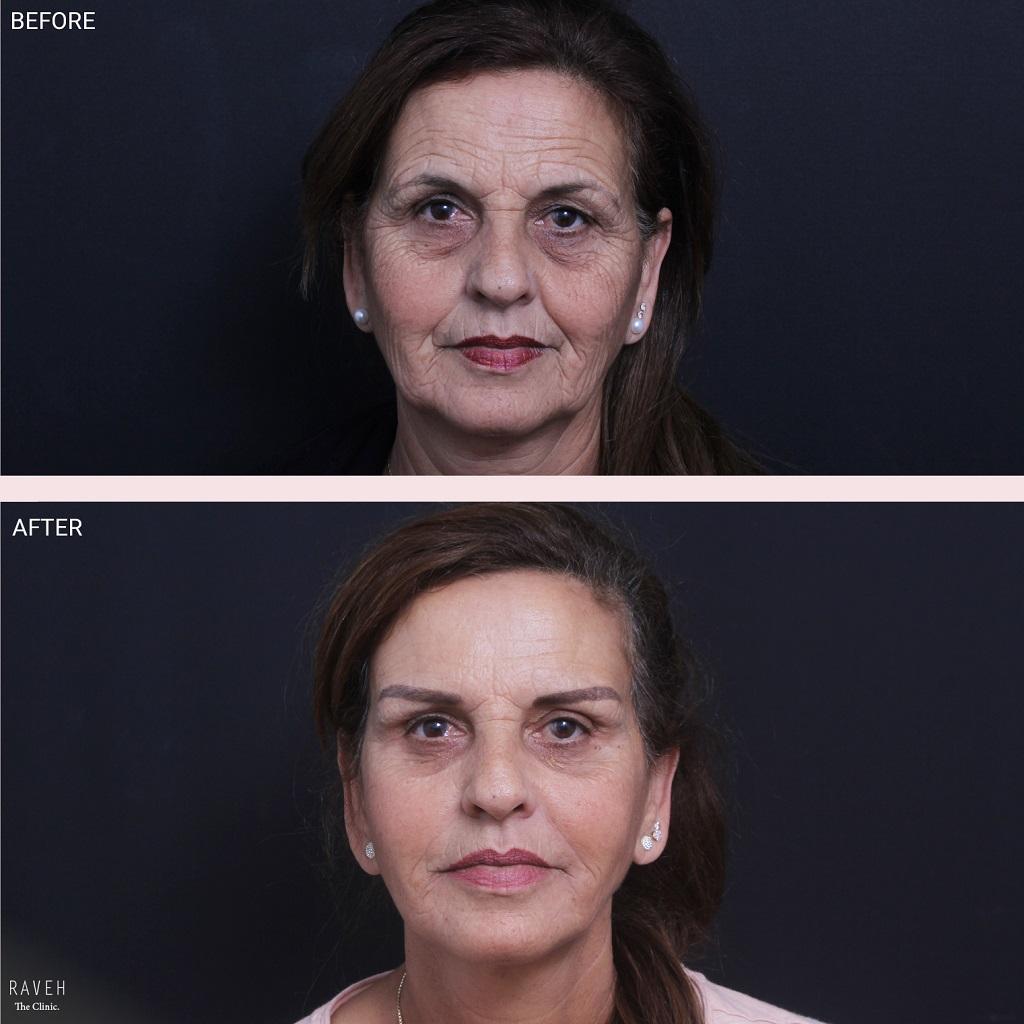 עשרה דברים שצריך לדעת על ניתוח מתיחת פנים