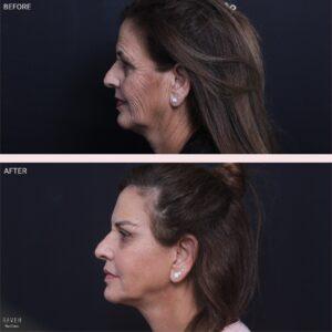 מה עליך לדעת לפני ניתוח מתיחת פנים?