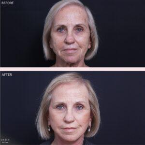 מדוע יותר ויותר נשים עושות ניתוחי מתיחת פנים?